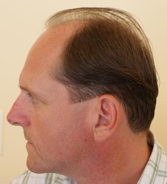 Haarkranz-Seite