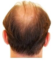 Haarkranz