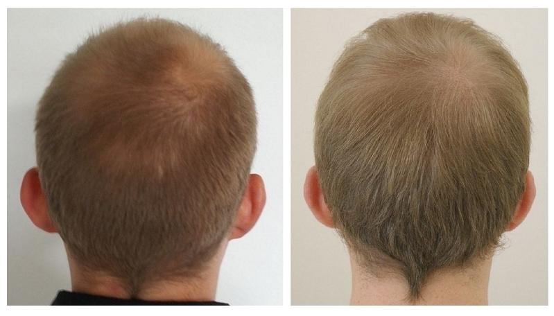 Haarlänge
